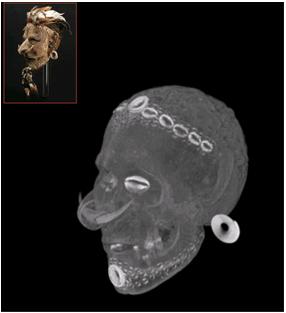 Imagen de la tomografía de una cara modelada sobre una calavera